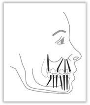 Abb. 2 – Anwendungsschema des Bicortical-Schraub-Implantates