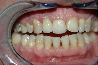 Abb. 4 - Kosmetisches Endergebnis (Porzellankrone auf dem Implantat).